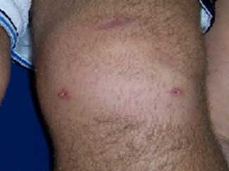 artroscopia rodilla