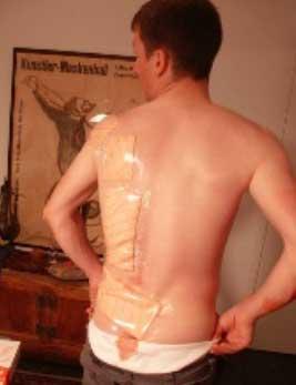 lesión ciclista - proceso de recuperación