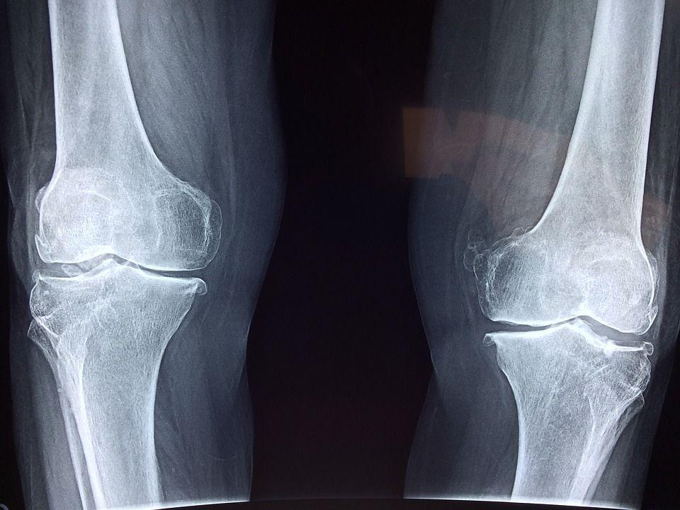 rayos x rodilla artrosis sportswrap